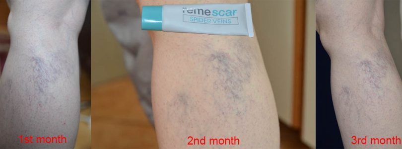 Remescar Spider Veins Cream review