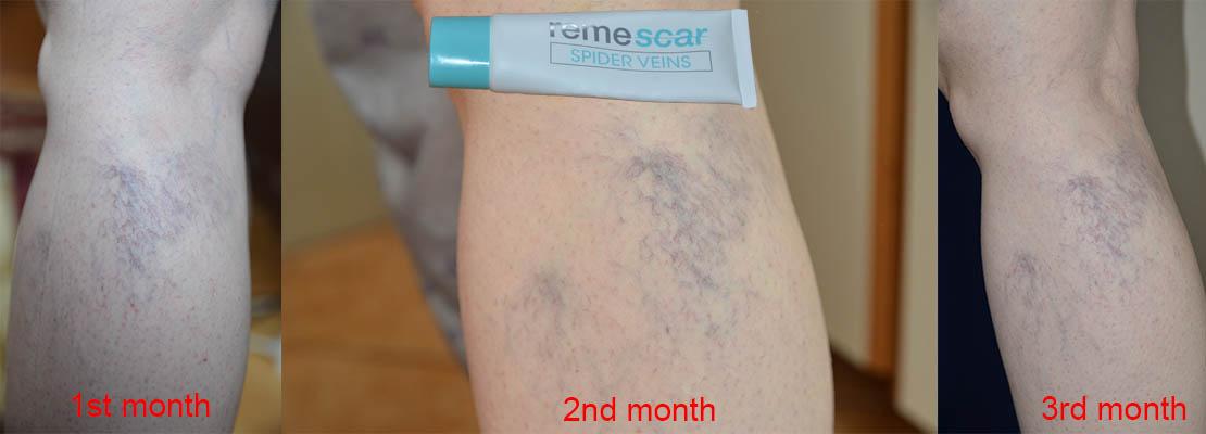 remescar spider veins review